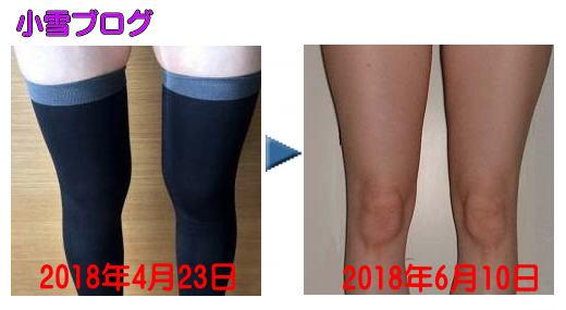 着圧式ストッキングの脚痩せ効果